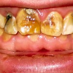 """Tooth decay, fluoride and dental abuse"""